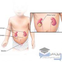 تومور ویلمز