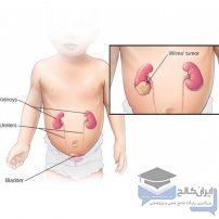 تومورهای جنینی