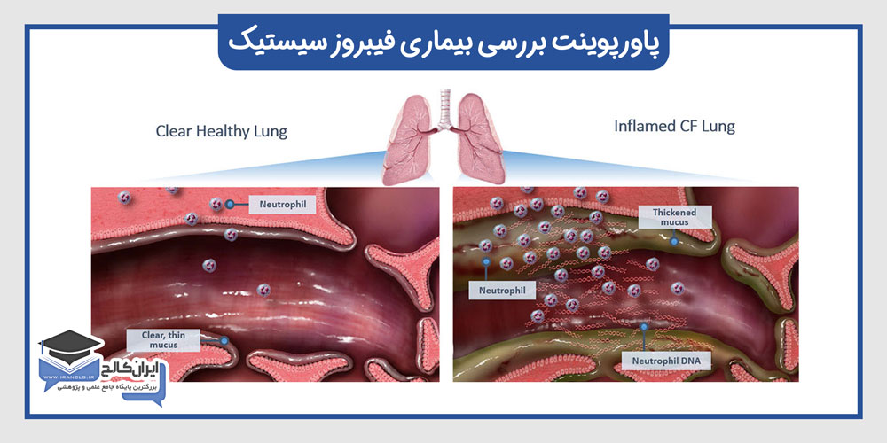 دانلود-رایگان-پاورپوینت-بررسی-بیماری-فیبروز-سیستیک